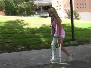 Erica leg cast